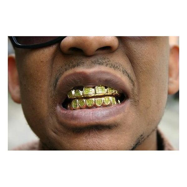 Zlatý zuby